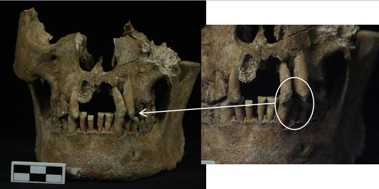 Burial C teeth with closeup of pipe stem groove (right).